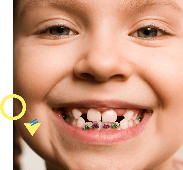 child with braces